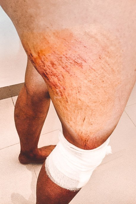 The injuries on Jasmine's right thigh from falling off the scooter in Nusa Penida